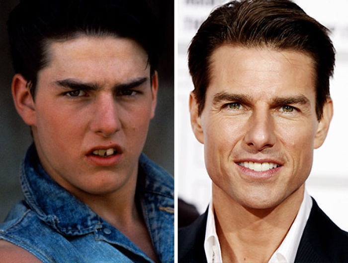 Tom Cruise Had A Remarkable Transformation