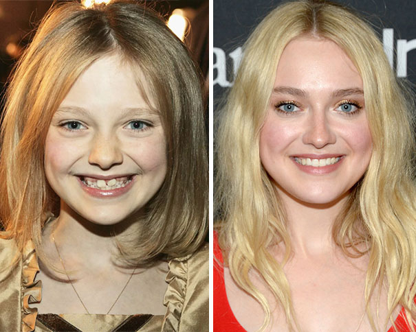 Dakota Fanning Before And After Having Braces