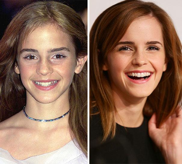 Emma Watson's Smile Transformation