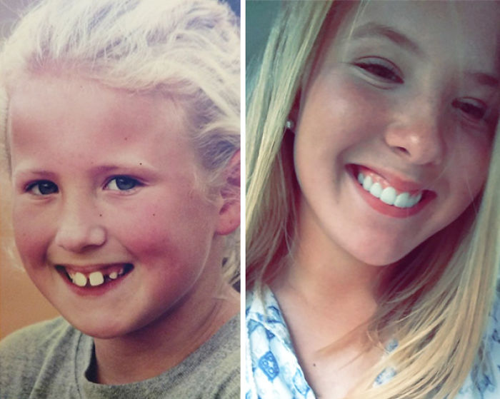 I'd Like To Thank Jesus And All Those Years Of Braces For This