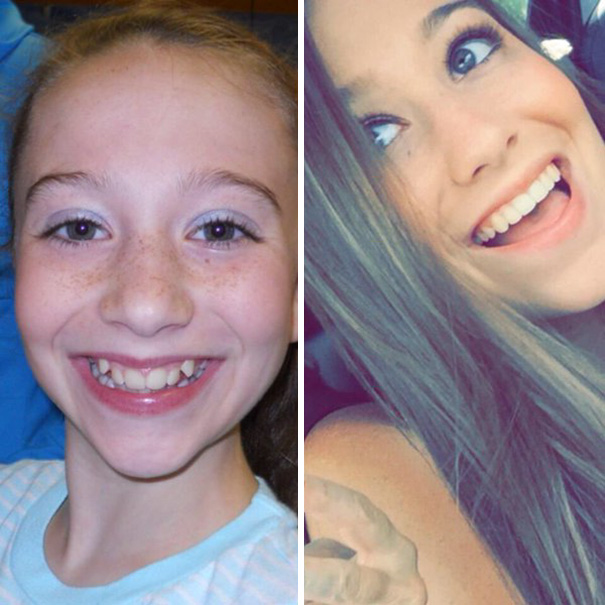 I Just Need To Take A Second And Thank My Orthodontist For Giving Me Braces