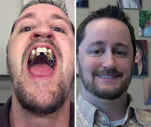 Progress Pics Of My Journey From Surgery To Braces To Straight Teeth