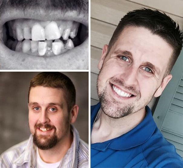 Amazing Smile Transformation!