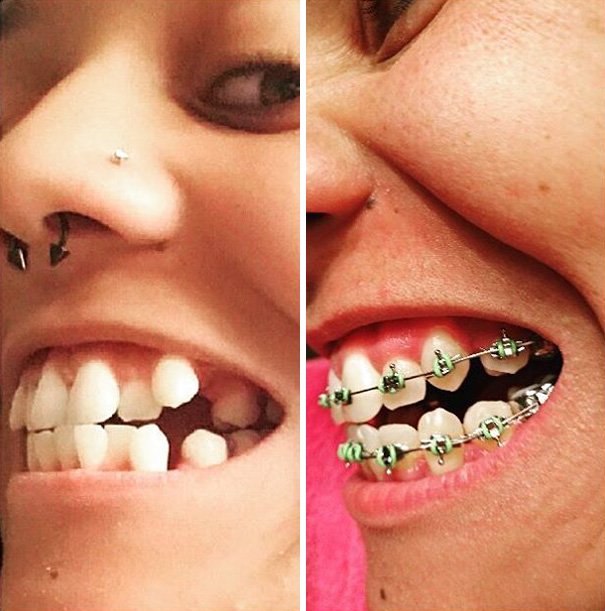 The Day Before I Got Braces Vs. Month 8