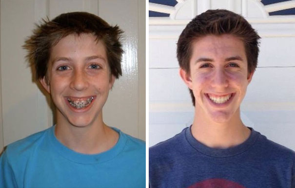 Before And After Braces. 4 Years Is A Long Time
