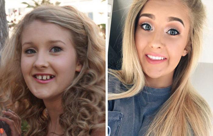 Tras 8 años de tratamiento, cirugía, aparato y 10 dientes movidos...