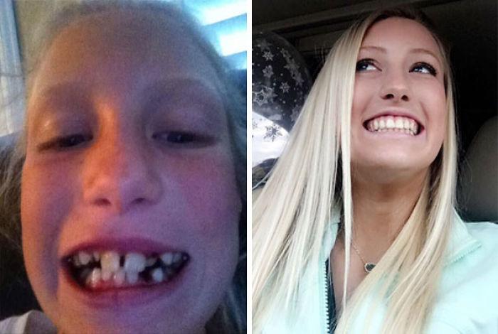 Hubo que sacarme las muelas del juicio y moverme 12 dientes, pero al fin sin aparato