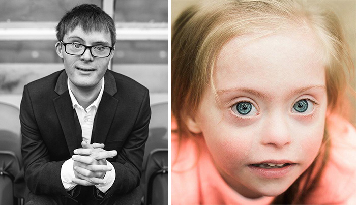 This Is Me: We Photographed People Beyond Their Disabilities