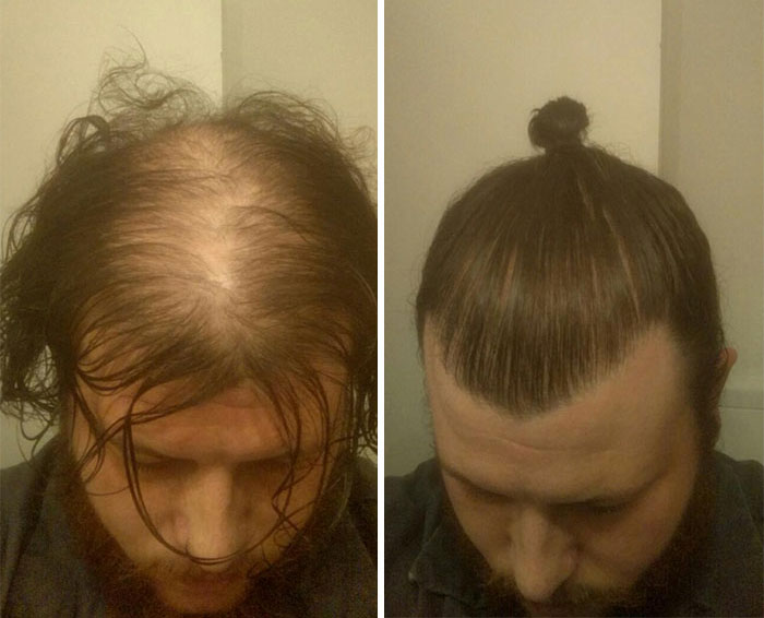 Men Are Hiding Baldness With Man Buns, But It's Riskier Than You Think