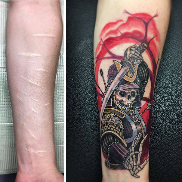 211 Amazing Tattoos That Turn Scars Into Works Of Art