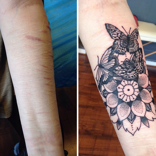 10 amazing tattoos that turn scars into works of art