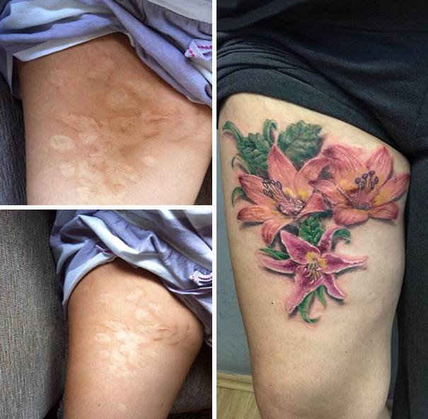 Scars Tattoo Cover Up
