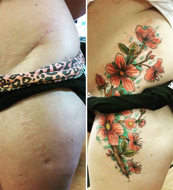 50 amazing tattoos that turn scars into works of art for Scars turned into tattoos