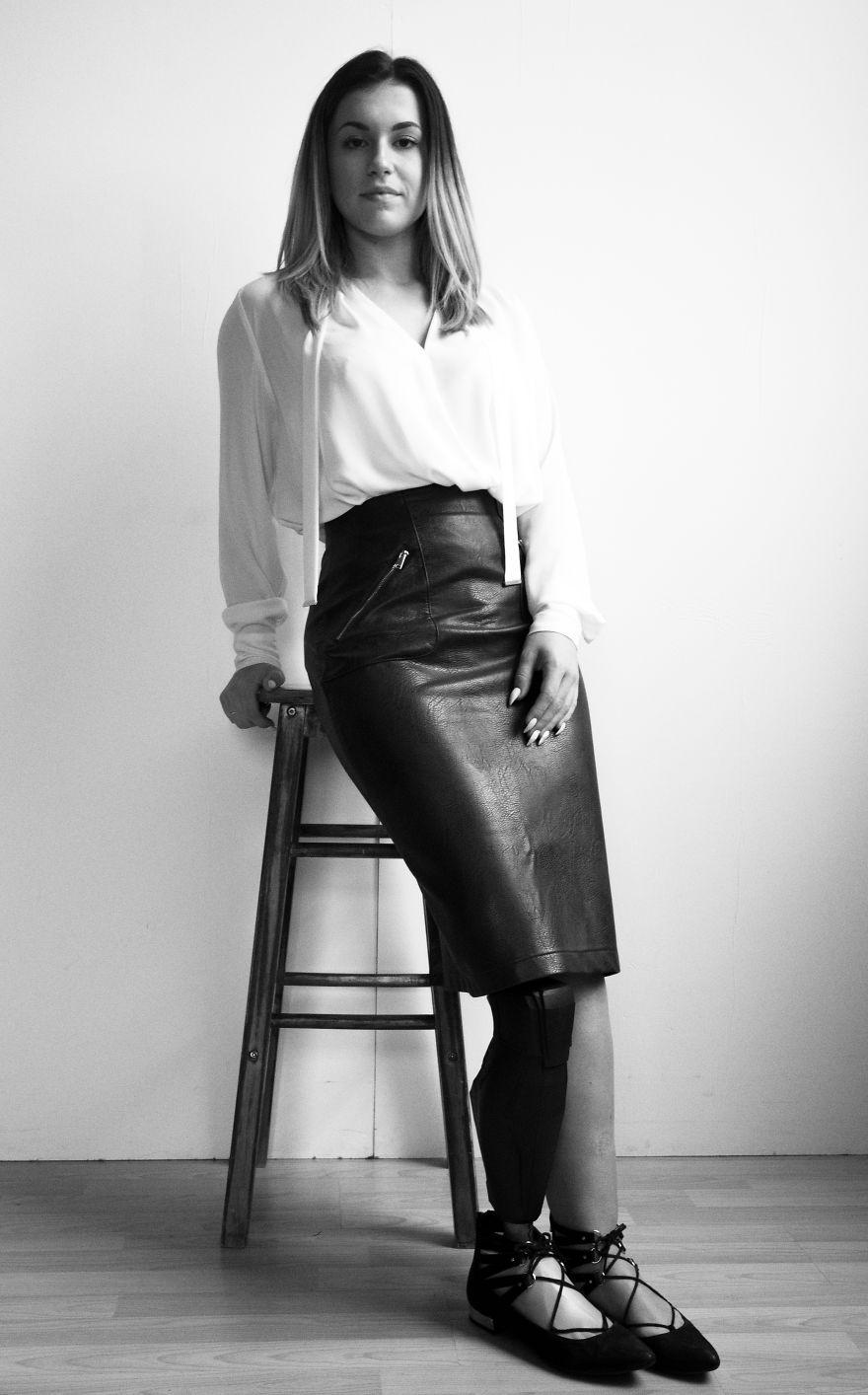Vicky. B Stunning Model & Amputee