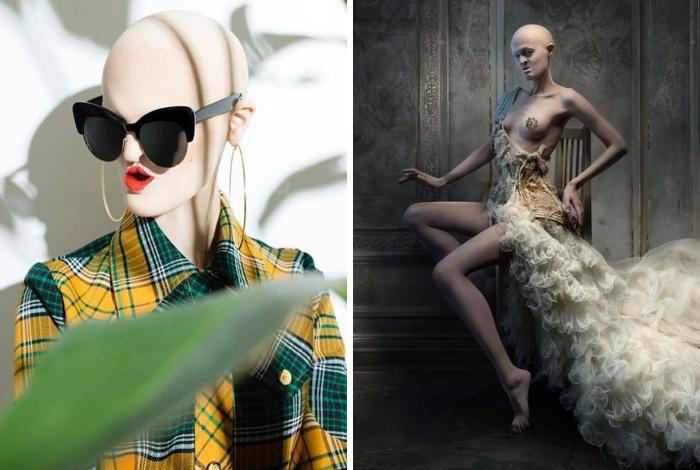 Esta es Melanie Gaydos, una modelo de 28 años con un raro trastorno genético que ha roto los estereotipos de la moda