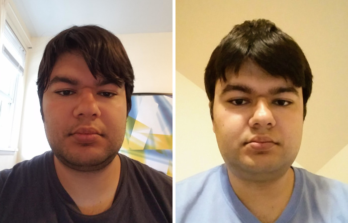 My Attempt To Become The World's First Person To Be Cured From Autism Through Plastic Surgery