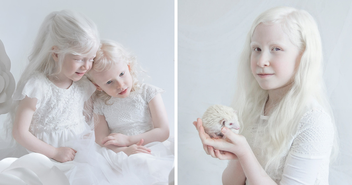 I Captured The Hypnotizing Beauty Of Albino People (Part 2)