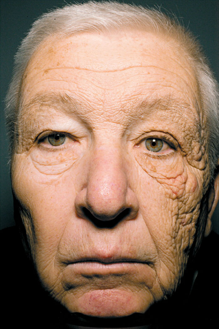 Sun Damage After 28 Years Of Driving A Delivery Truck