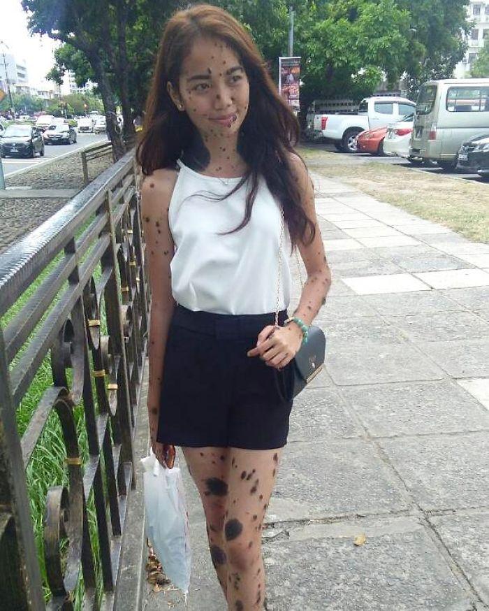 Black dress cover up moles