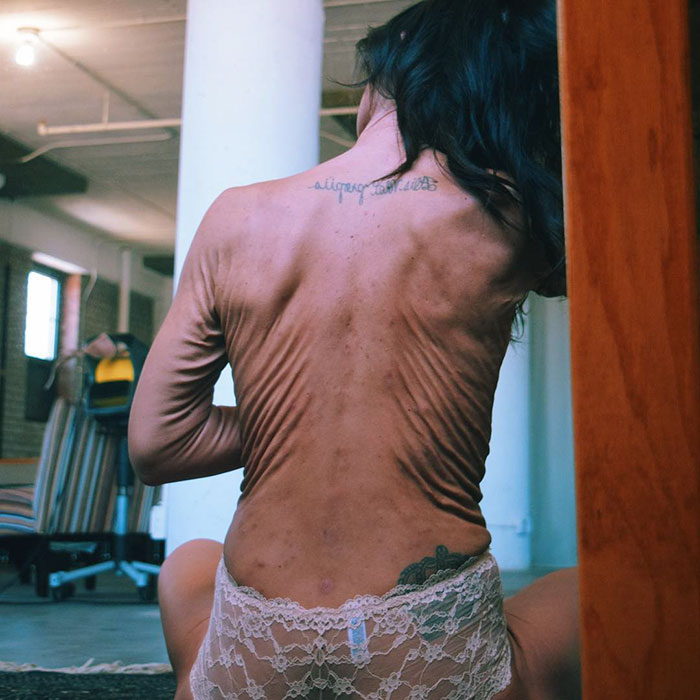 This 26-Year-Old Woman Is Changing The Way We Think About Beauty Standards