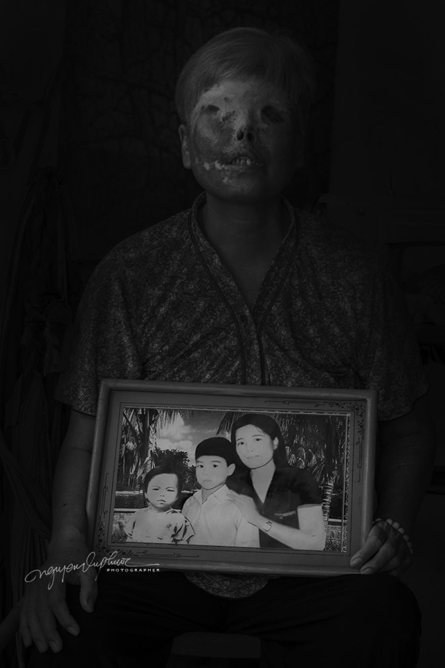More Brutal Than Death Reality Of Acid Burn Victims Of Vietnam
