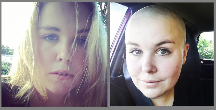 Shaved My Head For The 'shave For A Cure' Fundraiser For Leukaemia & Blood Cancer New Zealand.