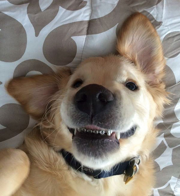 Cutest Braces Smile