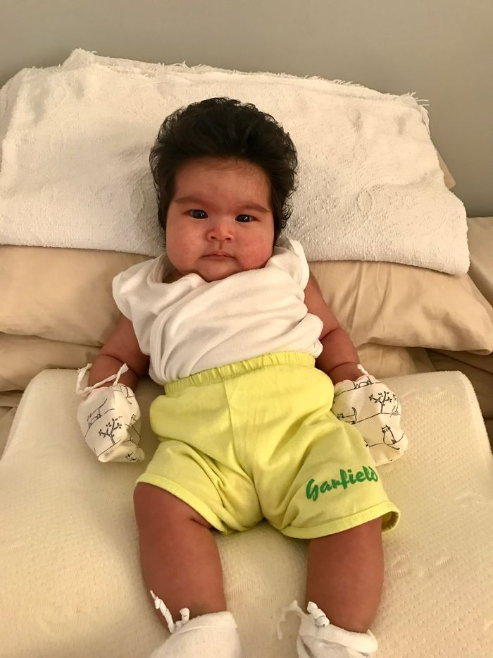 Hairy 2-Month-Old Baby Girl