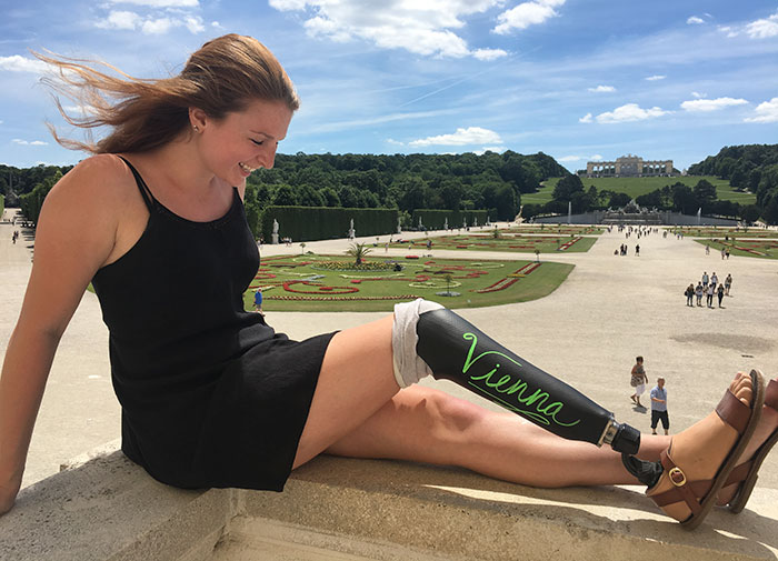 Girl Gets Herself A Chalkboard Leg For A Trip To Europe, And The World Falls In Love With Her