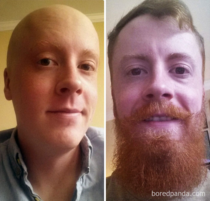 An Update On My Beard. 10 Months Cancer Free!