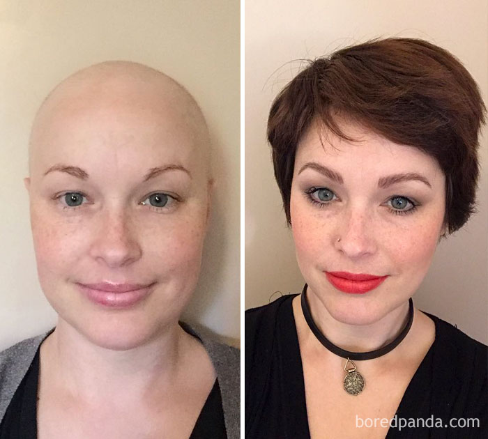 1 Year Post Chemo. This Time Last Year I Had Completed My 6th & Final Cycle Of Chemo