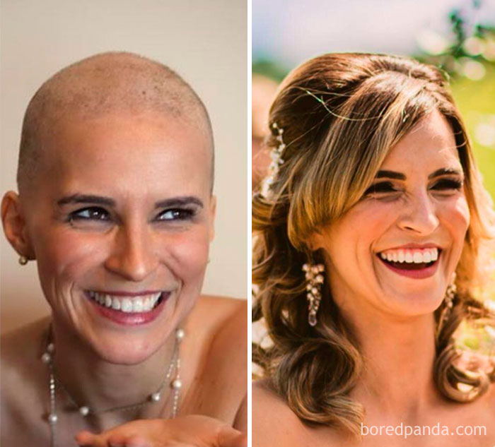 Same Smile 2 Years Apart, One During Chemo And The Other On Our Wedding Day! Happy To Be Cancerfree For 2 Years Now, 3 More To Go!