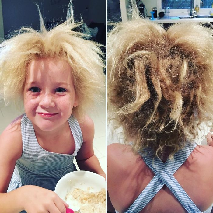 Meet The Rare Syndrome That Leaves The Girl's Hair Totally Wild, Literally Unthinkable