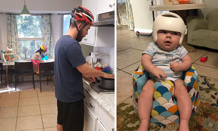 This Baby Has To Wear A Helmet So The Whole Family Decides To Step In