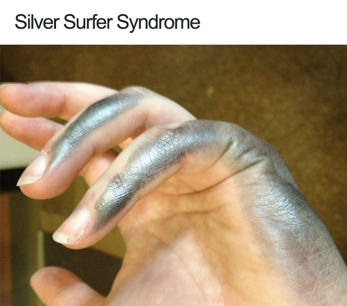 Silver Surfer Syndrome
