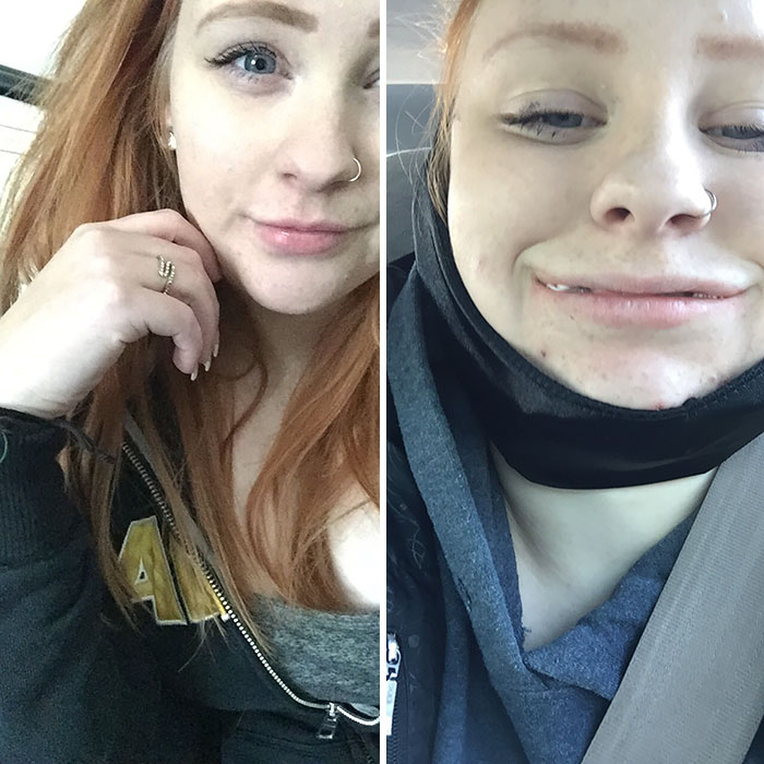 Got My Wisdom Teeth Out Today