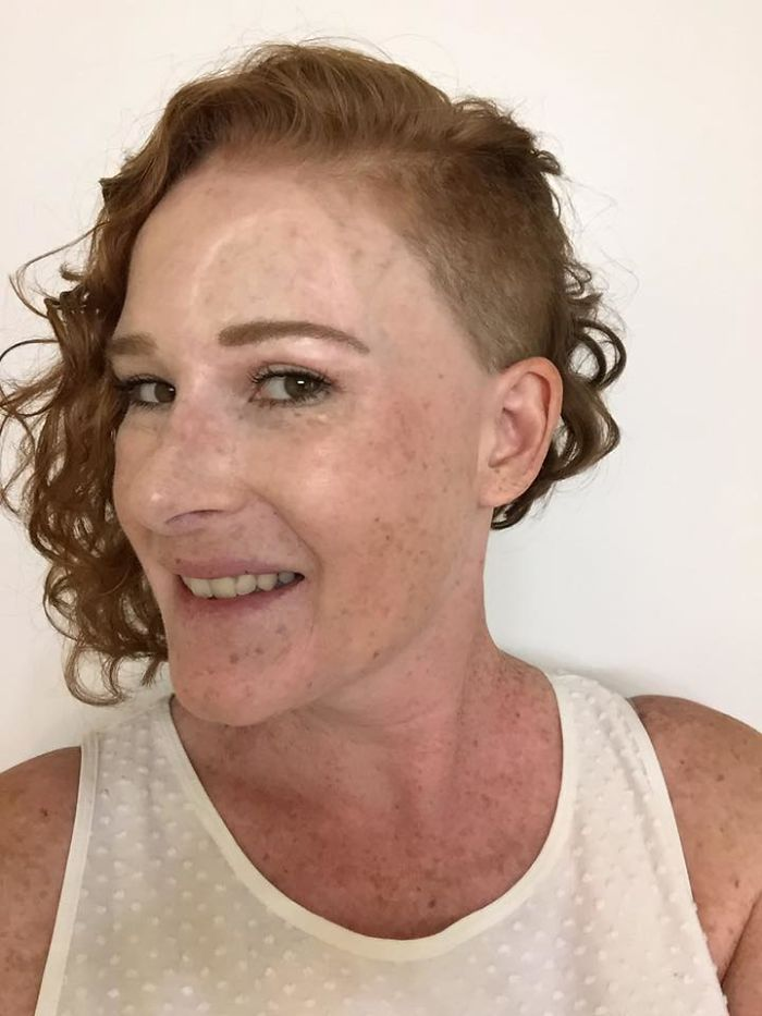 If This Mom's Before & After Photos Don't Scare You About Skin Cancer, Nothing Will