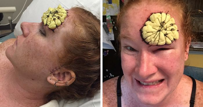 If This Mom S Before After Photos Don T Scare You About Skin Cancer Nothing Will Bored Panda