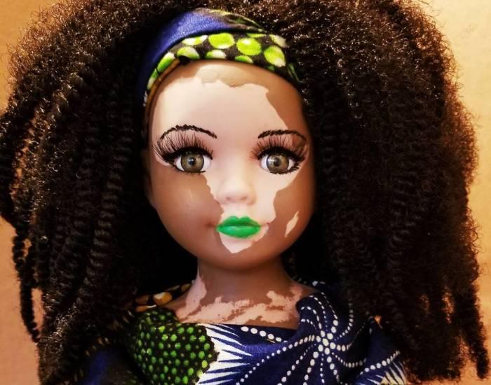 Esta artista crea muñecas con vitiligo para niños que sufren esta enfermedad de la piel