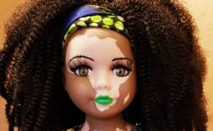 Artist Creates Dolls With Vitiligo For Kids With This Rare Skin Condition