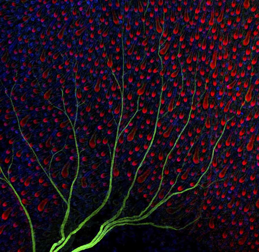 Nerves (In Green) Under The Skin Of A Mouse (Hair Follicles Are Shown In Red And Blue), Uk, Image Of Distinction