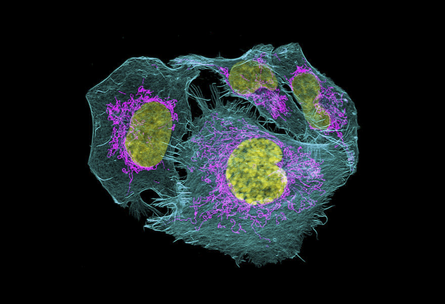 Prostate Cancer Cells, Usa, Image Of Distinction