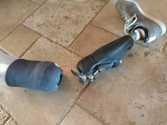 Mi tío se rompió la pierna hoy, dice que no le dolió
