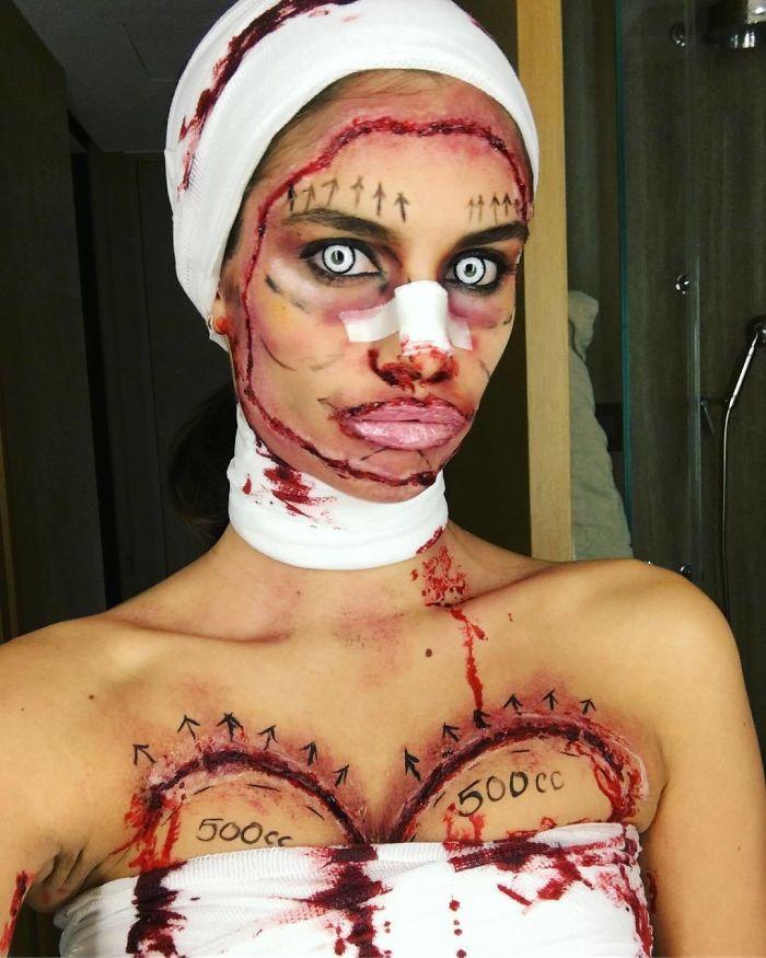Sara Sampaio As Plastic Surgery