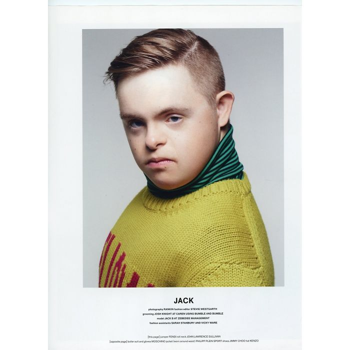 First Male Super Model Who Has Downs Syndrome