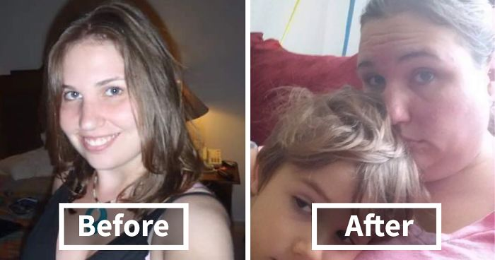 Got Todlerred: Parents Are Sharing Photos Of Them Before And After Having Kids, And The Difference Is Too Real
