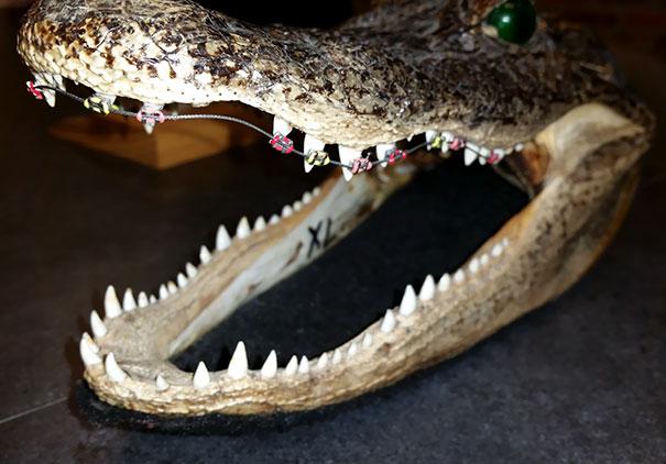 My Orthodontist Has A Crocodile Head With Braces On Its Teeth