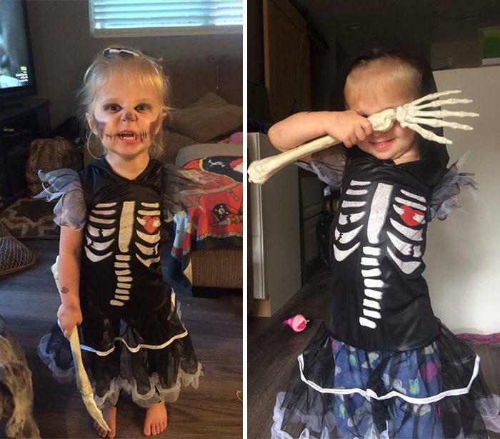 Niña amputada de 3 años con un disfraz único