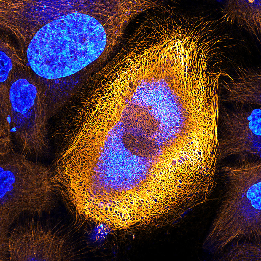 Immortalized Human Skin Cells Expressing Fluorescently Tagged Keratin, Amsterdam, 1st Place