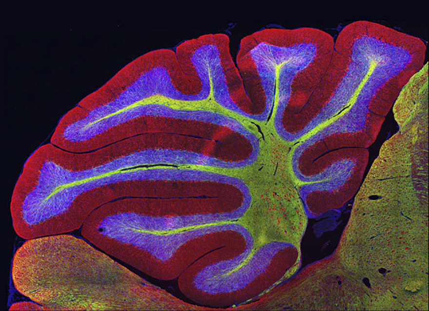 Sagittal Section Of Mouse Cerebellum (Brain), Athens, Image Of Distinction